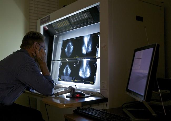 mammogram computer doctor