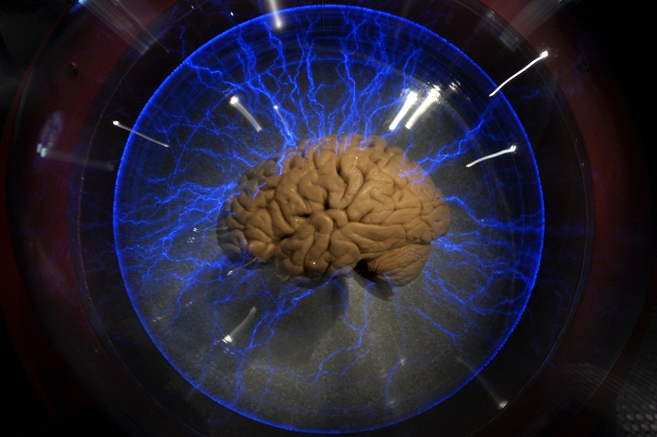 A human brain displayed inside a glass box, as part of an interactive exhbition 'Brain: a world inside your head', in Sao Paulo, Brazil, on August 21, 2009.