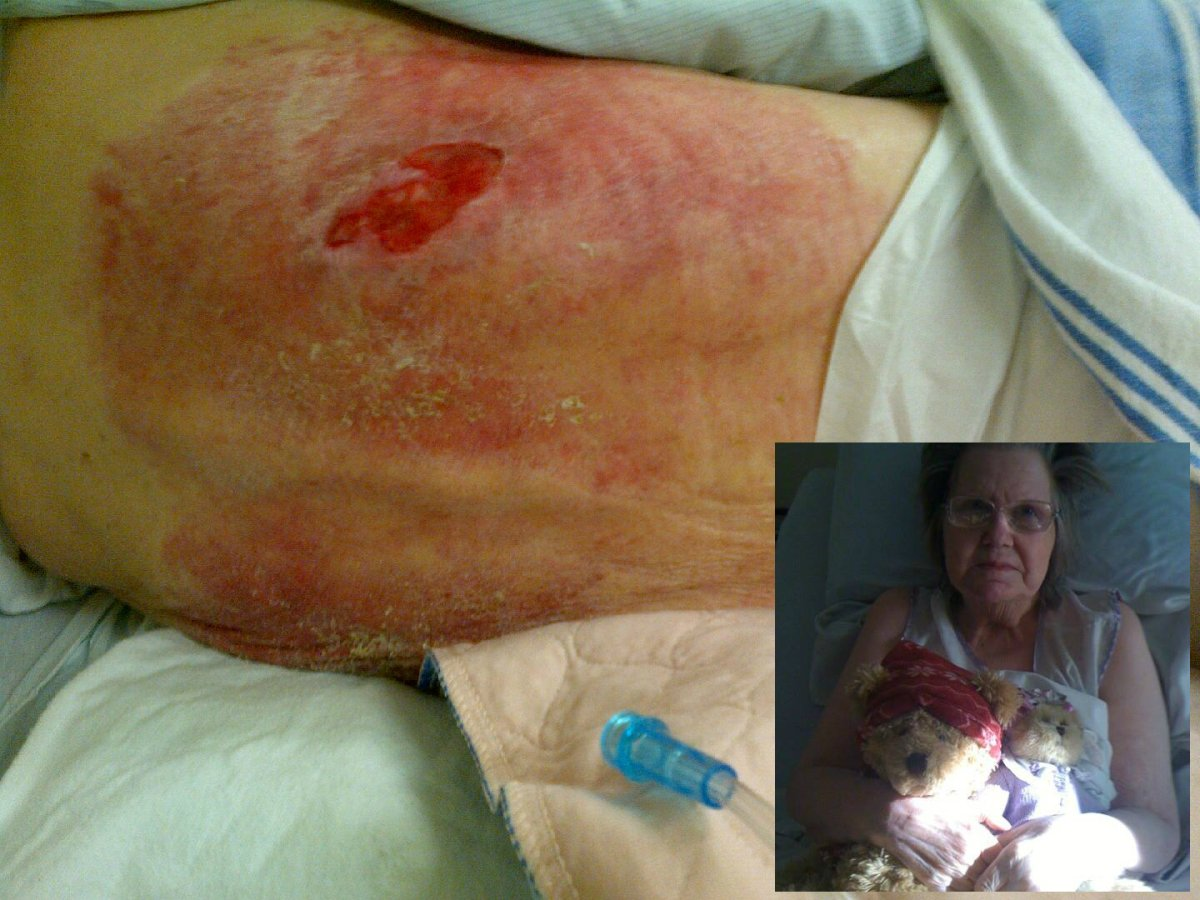 A Saskatchewan family is calling for minimum care requirements in senior care homes after they say their 74-year-old mother became malnourished, developed large bedsores, and was otherwise neglected while staying in a Regina residence.