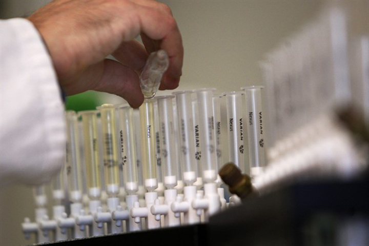 A technician prepares urine samples for doping tests in 2010. When you're an Olympic athlete, the demands to pee in a cup don't end when the Games are over.