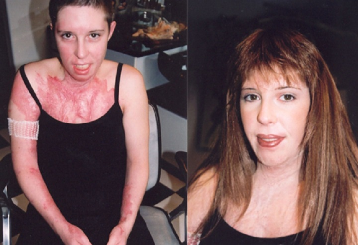 Tara Jacques was doused in lighter fluid and set on fire. This is her before and after with paramedical makeup artist LeiLani Kopp.