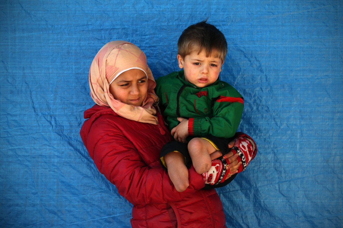 Fatemah Aldan holds her 2 year old brother, Saif, who lost both legs during a barrel bomb attack on their home town of Aleppo. Bashar al-Assad has been accused of barrel-bombing Syrian civilians.