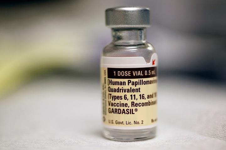 Gardasil vaccine quebec - Papilloma a torokban - Hpv vaccine quebec Hpv vaccine quebec