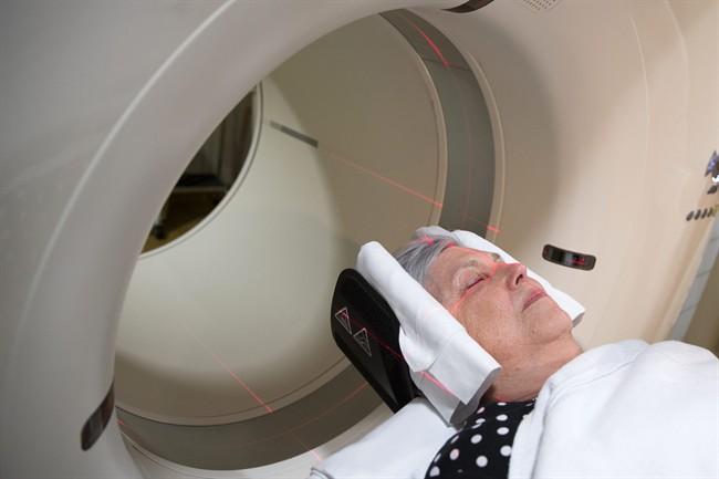 Study peeks into healthy brains to hunt Alzheimer's culprit - image