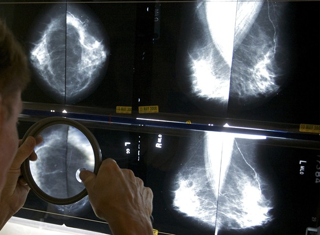 This lesser known breast cancer warning sign helped save British woman's life - image