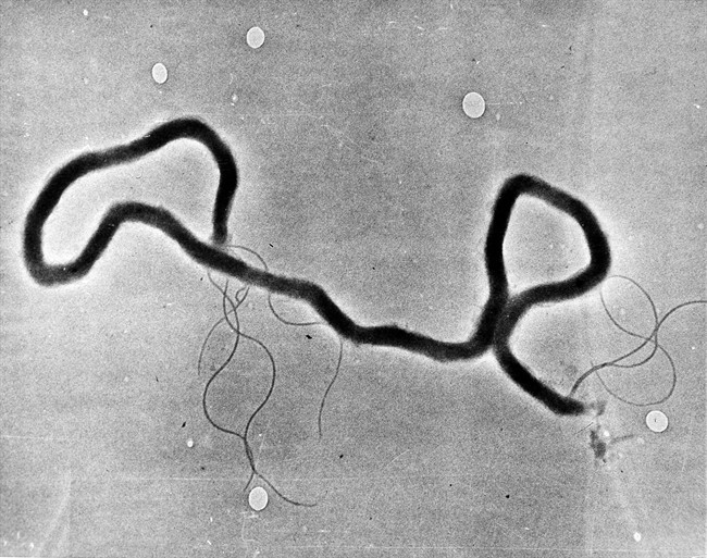 In this 1944 file photo, the organism treponema pallidum, which causes syphilis, is seen through an electron microscope. Syphilis rates in Alberta more than doubled in a year.