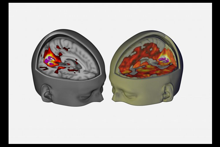 Using an MRI, scientists probed what goes on in the brain of someone on LSD.