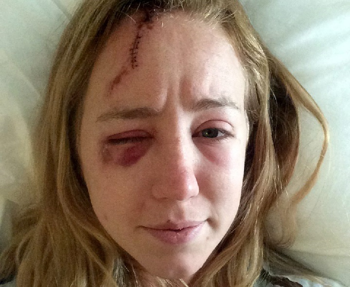 In this photo taken on June 19, 2015 provided by Mollyann Hart, Hart poses for a selfie showing injuries from a lightning strike while recovering at a hospital in Hagerstown, Md. She and her sister were struck after taking shelter inside a stone observation tower at Washington Monument State Park. The tower reopened Thursday, April 28, 2016, after a closure to repair damage caused by the strike.