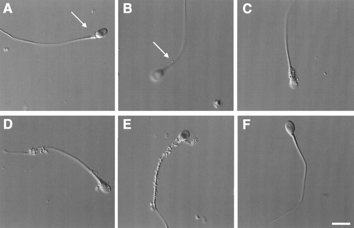Nomarski microscopy image of sperm incubated in vitro with Mycoplasma genitalium.