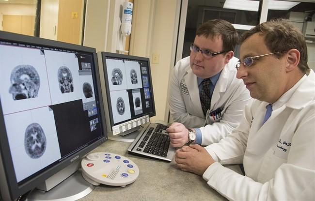 New study locates genes affecting depression risk - image