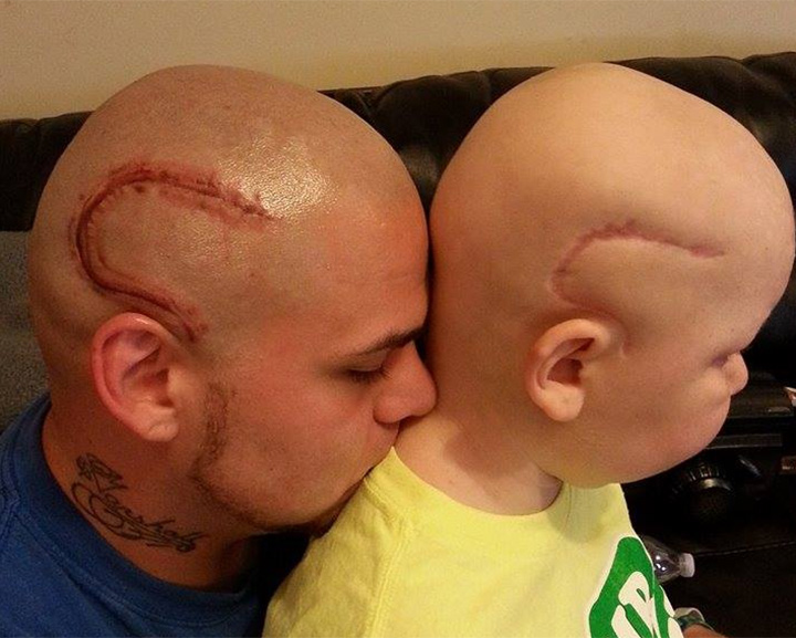 Dad gets massive tattoo to match son's brain cancer surgery scar.