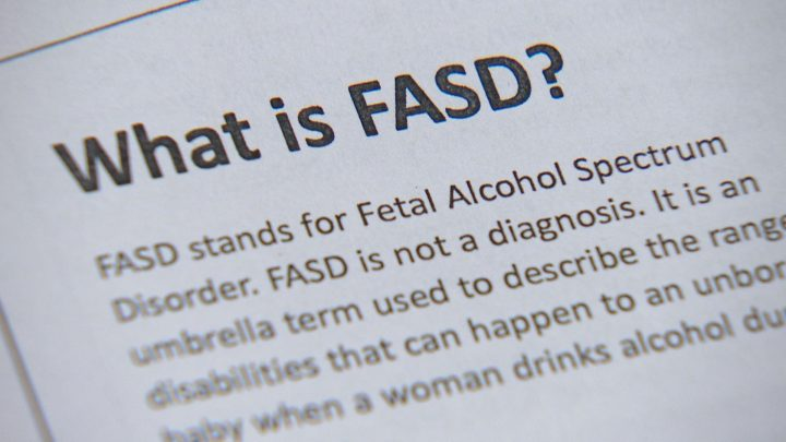 "FASD is a neurodevelopmental disorder resulting from the consumption of alcohol during pregnancy and leads to permanent  ""behavioural and intellectual problems""."