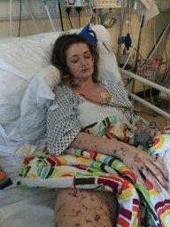 Continue reading: Woman shares shocking photos to raise awareness of meningitis