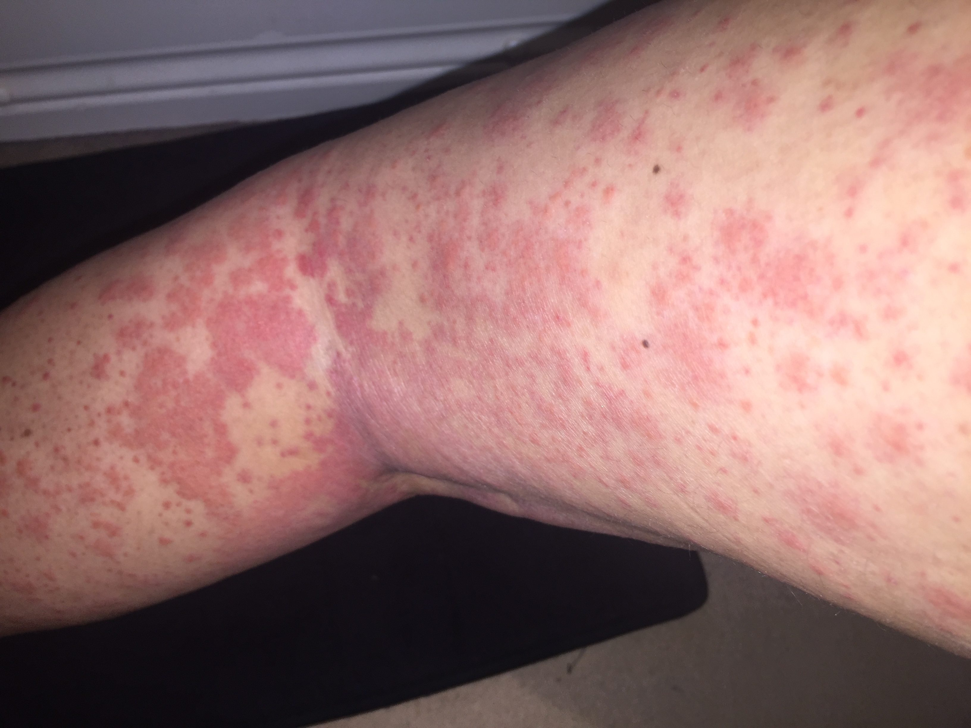 Bizarre Rash Leads To Cancer Diagnosis For Young Woman