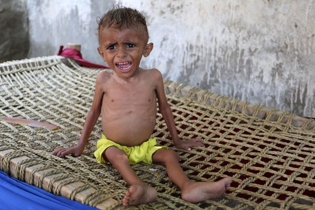 A malnourished Yemeni boy sits on a wooden bench on September 26, 2016 in an impoverished coastal village on the outskirts of the rebel-held Yemeni port city city of Hodeida, where malnutrition has hit the population hard.