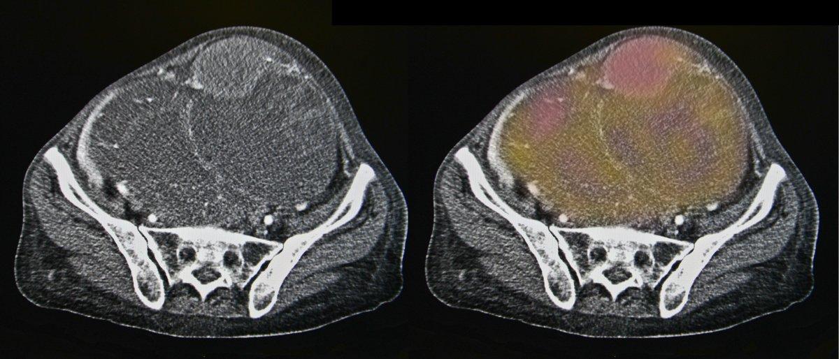 Ovarian cancer, CT.