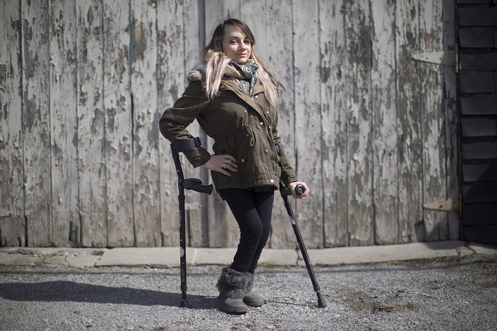 Haily Butler-Henderson is photographed near her Toronto home , on Friday March 17, 2017. Butler-Henderson is launching a human rights complaint against a restaurant that wouldn't let her use the washroom because she's on crutches. THE CANADIAN PRESS/Chris Young.