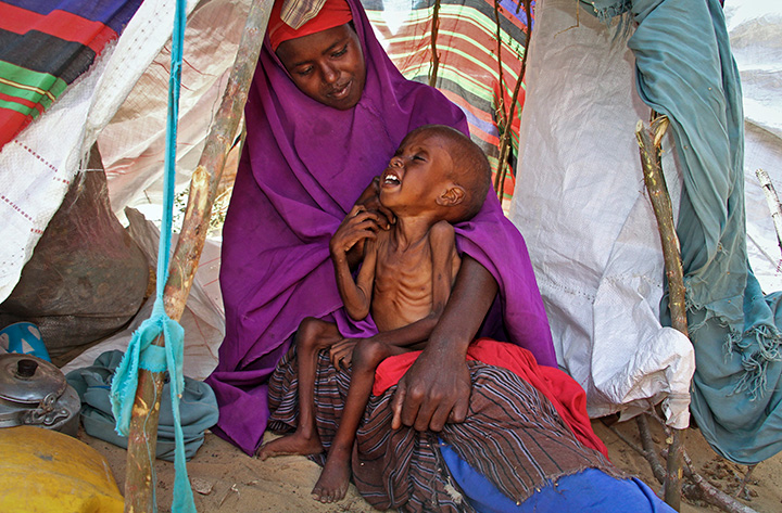 In this photo taken Tuesday, March 28, 2017, a newly displaced Somali mother comforts her malnourished child in their makeshift shelter at a camp in the Garasbaley area on the outskirts of Mogadishu.