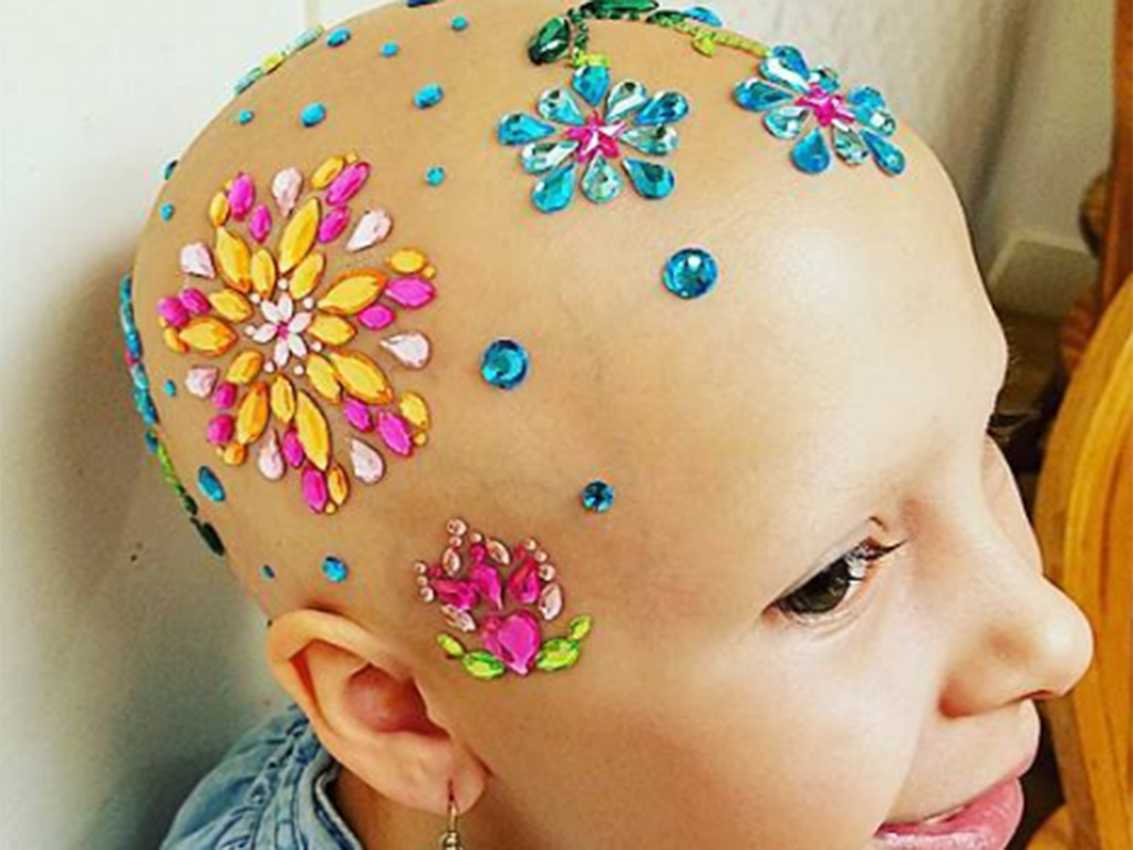 Gianessa Wride has alopecia, an autoimmune disorder that causes hair loss, but that didn't stop her from participating in 'Crazy Hair Day' at school.