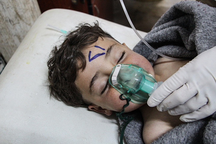 A Syrian child receives treatment after an alleged chemical attack at a field hospital in Saraqib, Idlib province, northern Syria, April 4, 2017.