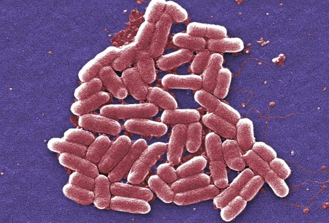 A file photo of a strain of the E. coli bacteria.