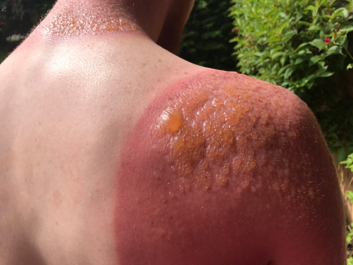 Man Warns Of Dangers Of Sun Exposure After Getting 2nd Degree Burns National Globalnews Ca