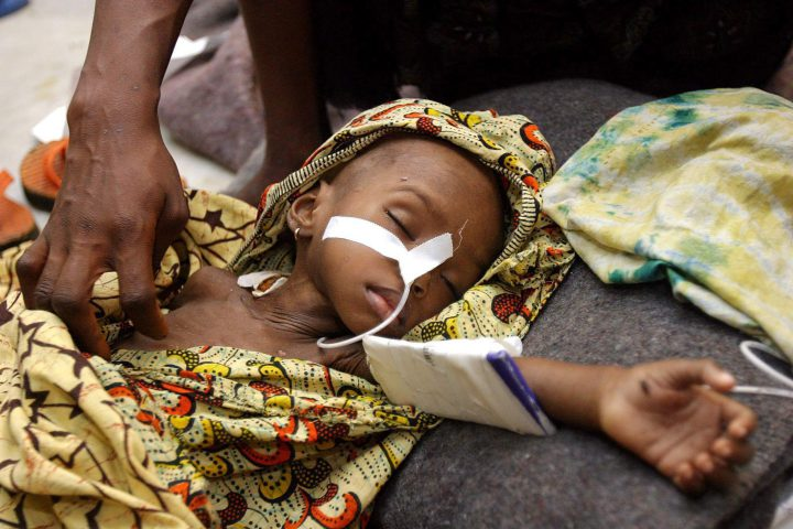 Liberian girl Edith Gboe, suffering from malaria and malnutrition lies asleep at the Medicines Sans Frontiers clinic, Monrovia on 28 July 2003.