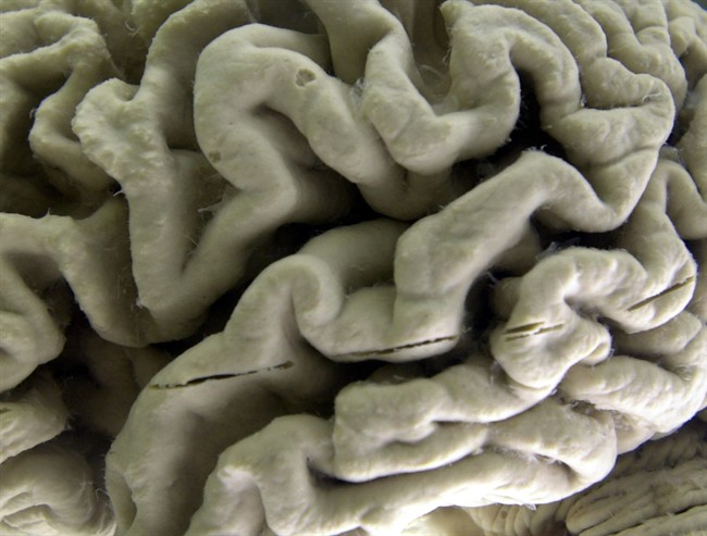 Traumatic brain injuries can increase a person's risk of developing dementia, according to a new study.