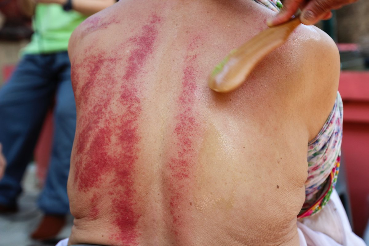 Gua Sha is an East Asian alternative medicine technique that claims to help relieve pain.