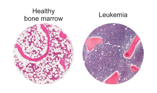 Fat cells (white circles) in healthy human bone marrow, left, compared to bone marrow in a patient with leukemia, right.