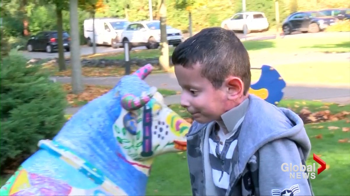 Hassan, 9, was born with a disease known as junctional epidermolysis bullosa, a condition that makes the skin and organs fragile and prone to blistering.