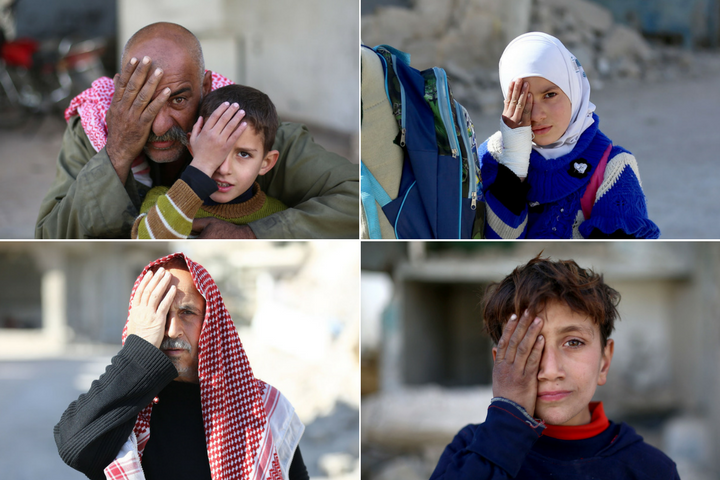 Syrians are covering their eyes in solidarity with a baby who was injured by violence.