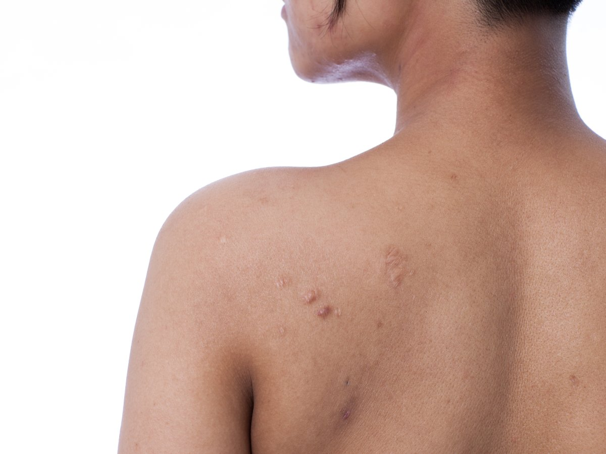 Bacne is a result of clogged pores on your back, and it can be stubborn and recurrent.