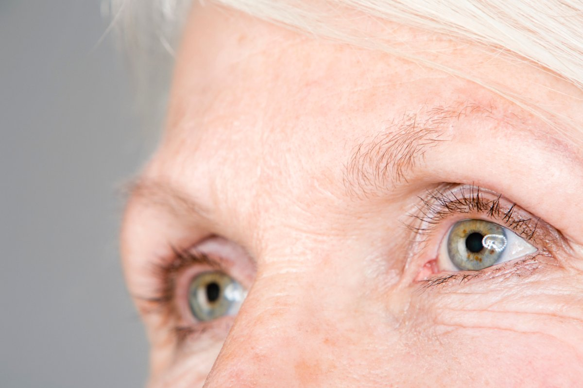 About one million Canadians have age-related macular degeneration.