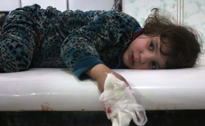 A lightly wounded Syrian girl lies on a stretcher.