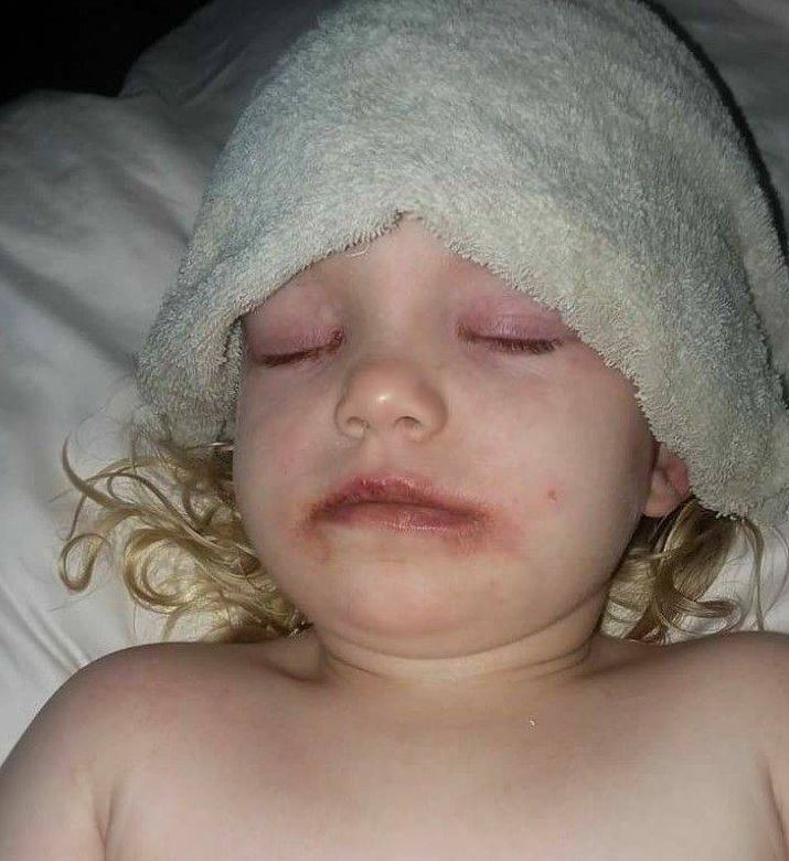 Lydia Cravens, 3, in hospital following a severe allergic reaction to a kid's makeup kit.