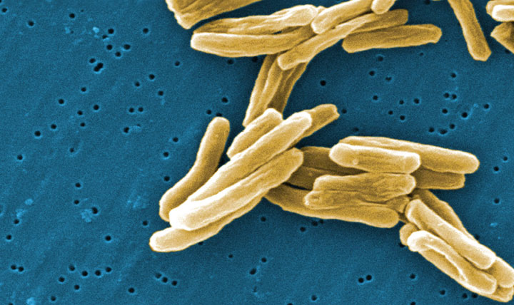 The Mycobacterium tuberculosis (TB) bacteria is shown in a 2006 high magnification scanning electron micrograph image.