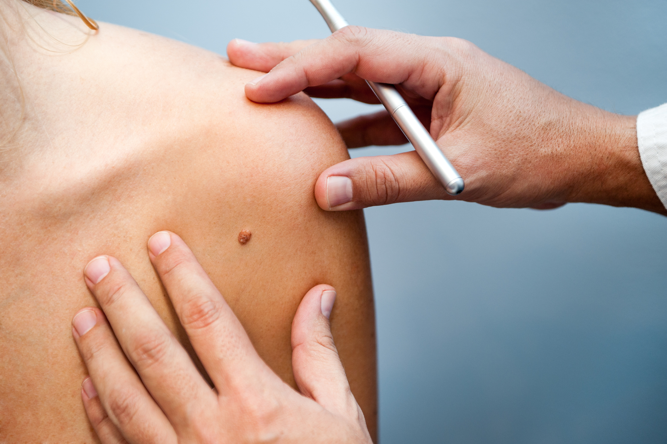 Melanoma Is The Deadliest Form Of Skin Cancer Here Are The Warning Signs National Globalnews Ca