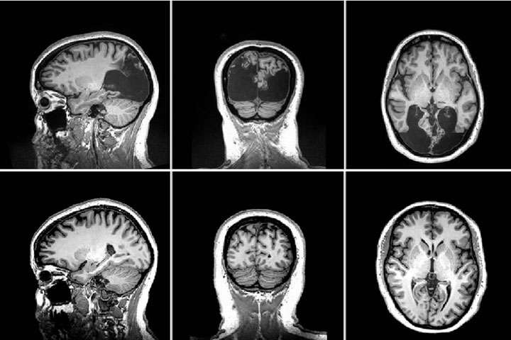 Scans of Milena Canning's brain (top) compared to those of another woman her age (bottom). The areas damaged by stroke appear black.
