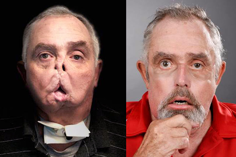 First Canadian face transplant: Man doing well after life-changing surgery - image