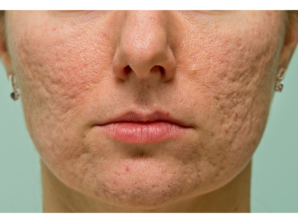 Acne scars form when inflammation causes changes in your skin's collagen. But they're not necessarily irreversible.