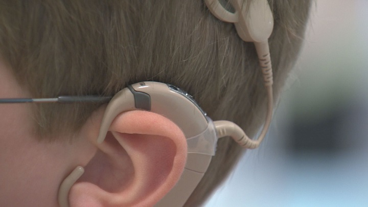 The 250th cochlear implant surgery in Manitoba was completed in June 2018.
