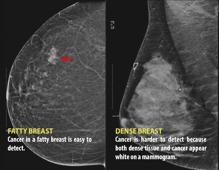 We Need To Talk About Dense Breasts Why Governments Are Taking Notice National Globalnews Ca