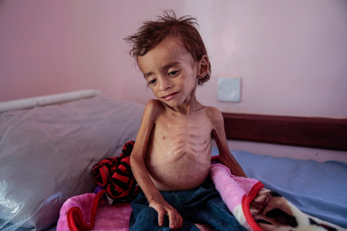 In this Oct. 1, 2018, photo, a malnourished boy sits on a hospital bed at the Aslam Health Center, Hajjah, Yemen.