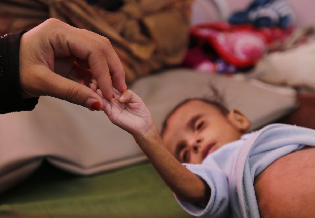 A Yemeni woman holds a hand of her malnourished child as he receives medical attention at a malnutrition treatment center in Sana'a, Yemen, 16 November 2018.