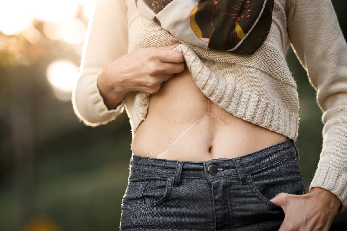 Close of belly of a girl with liver transplant scars.