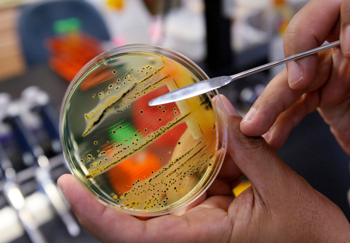 A doctor points out a growth of of salmonella in a petri dish at IEH Laboratories in Lake Forest Park, Wash., in this Monday, May 17, 2010 file photo.