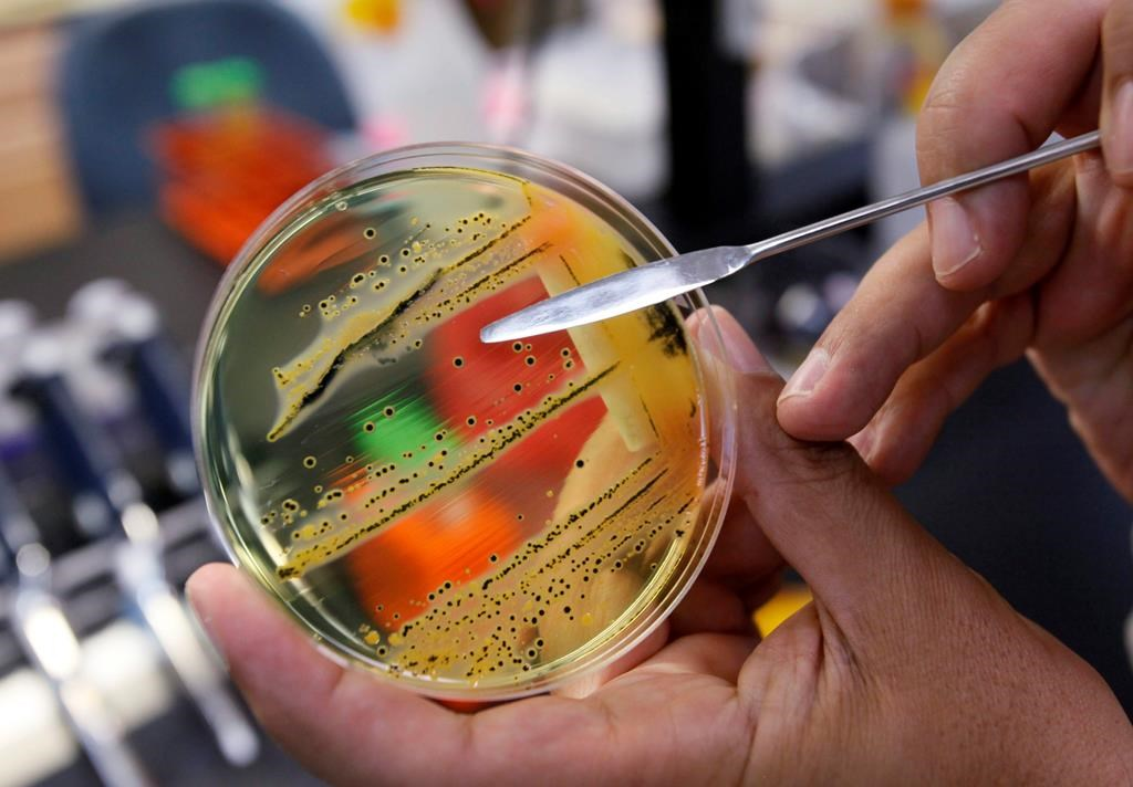 A doctor points out a growth of of salmonella in a petri dish at IEH Laboratories in Lake Forest Park, Wash., in this Monday, May 17, 2010 file photo. THE CANADIAN PRESS/AP/Elaine Thompson, file.