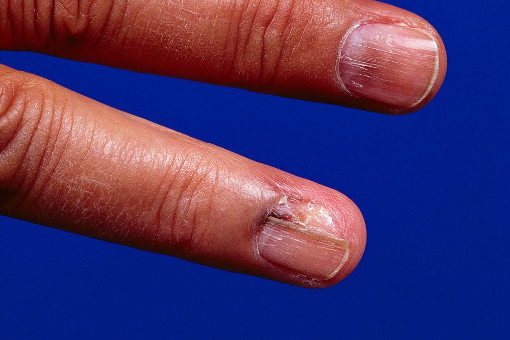 When Melanoma Hides Woman Develops Skin Cancer Under Her Nail National Globalnews Ca