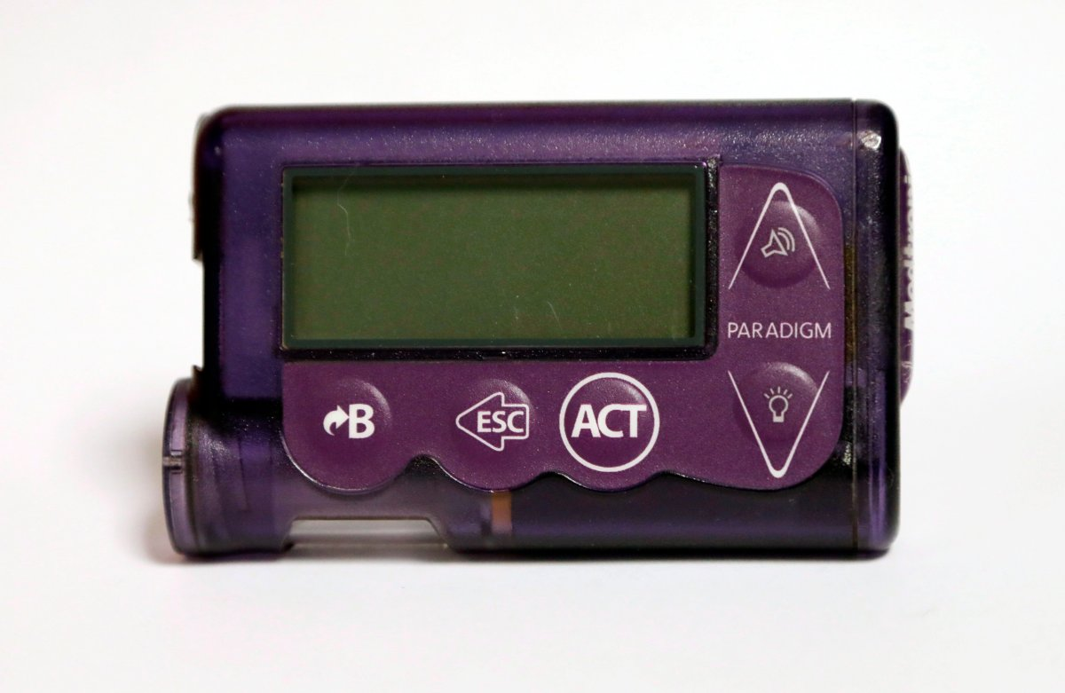 This Nov. 14, 2018 photo taken in Jackson, Miss., shows the Medtronic Paradigm REAL-Time Revel insulin pump of Polly Varnado's daughter.
